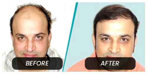Hair Transplant in Bandora