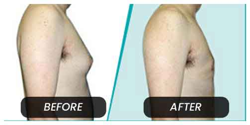 Cosmatic Sugery in Calangute