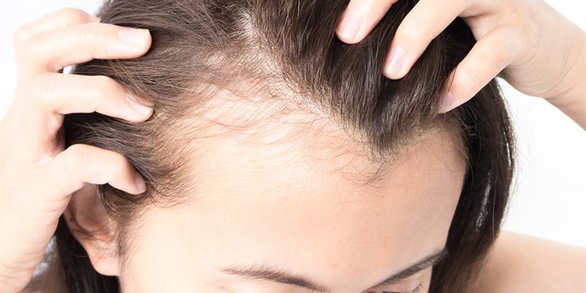 5 Reasons For Hair Loss in Women: Be More Considerate Next Time