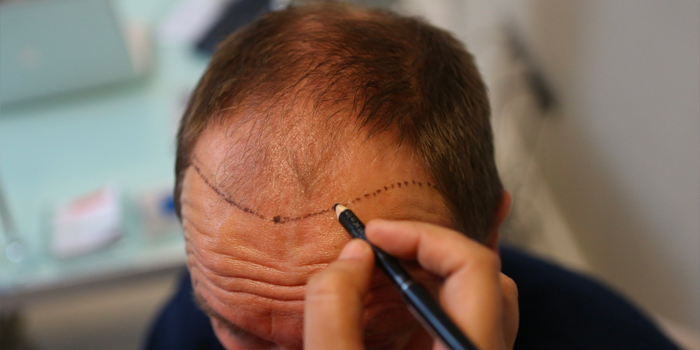 Different Types Of Hair Transplantation Techniques