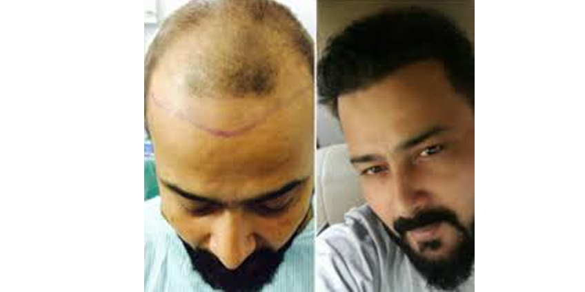 How The Best Hair Transplant Clinic in Delhi Can Change Your Life