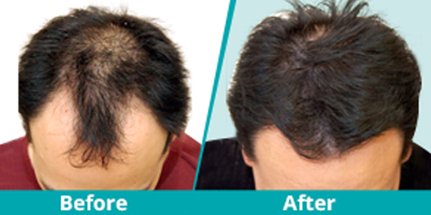 Reshape your hairline with Enhance Clinics