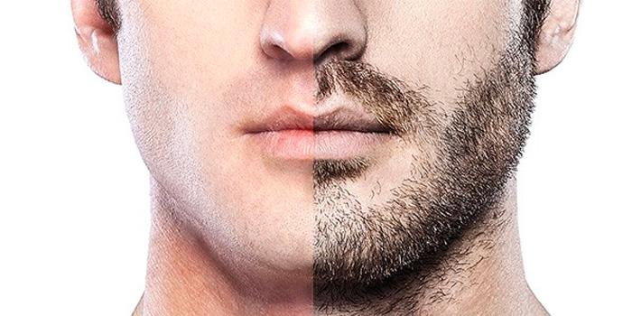 The Growing Popularity Of Beard Transplant Among Young Men