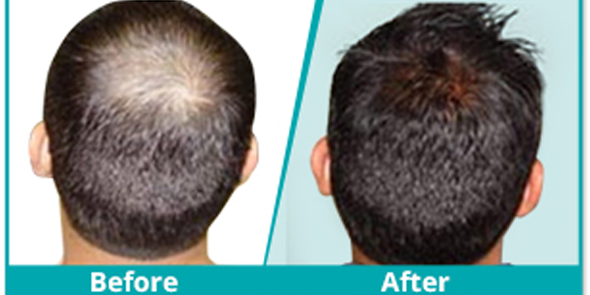 What Makes The Best Hair Transplant Surgeon?
