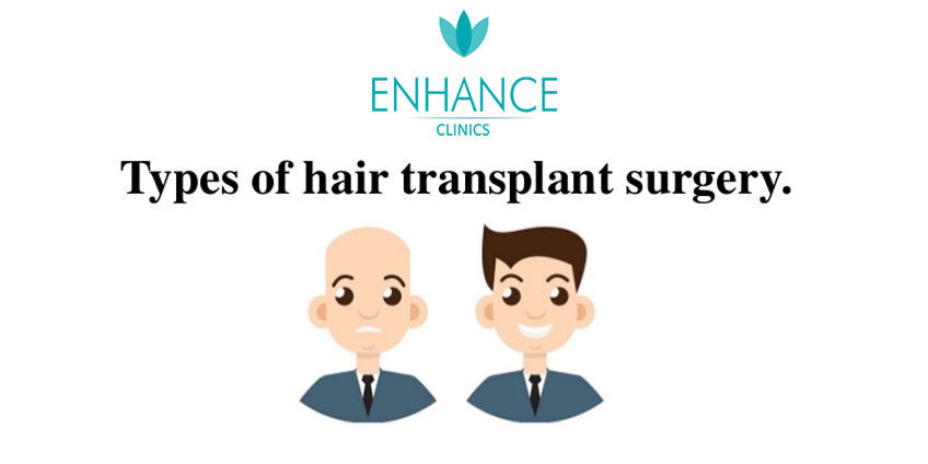 What are the Popular Types of Hair Transplants