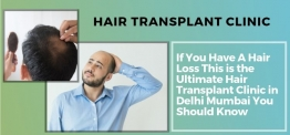 22 Best Hair Transplant In Delhi and Mumbai For Unparallel Cost