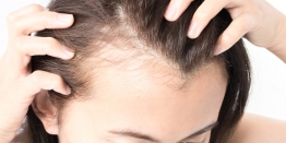 5 Reasons For Hair Loss in Women Be More Considerate Next Time