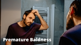 5 Reasons For Premature Baldness Experience The Hair Loss Treatment