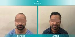 DHR Hair Transplant Cost in Delhi