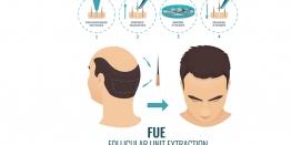 FUE Hair Treatment in Delhi