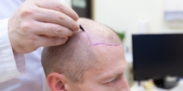 How Much Does A Hair Transplant Cost In India