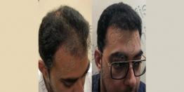 How to Repair a Bad Hair Transplant