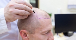 The Booming industry of Hair transplant