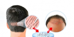 The Cost Of Hair Transplantation In India