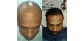 Things to Know Before Planning Your Hair Transplant in Delhi