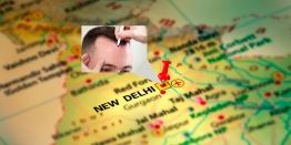 Top 4 Criteria To Choose the Best Hair Transplantation Clinic In Delhi