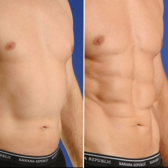 Abdominal Liposuction Surgery in International Airport