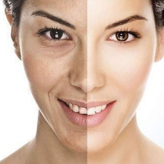 Anti Aging Fillers Treatment in International Airport