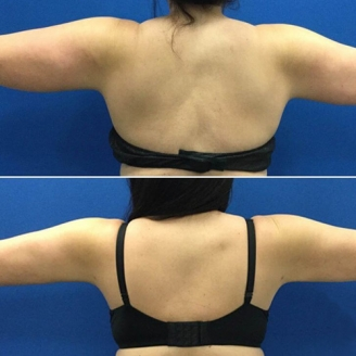 Arm liposuction in Dhalai