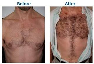 Body Hair Transplant in Middle East