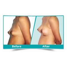 Breast Augmentation in Meghalaya