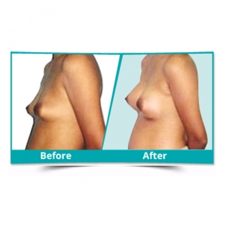 Breast Augmentation in Chirang