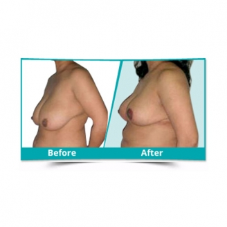 Breast Reduction lift Surgery in Kerala