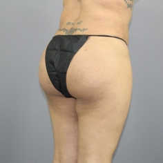 Buttock liposuction in Sikkim