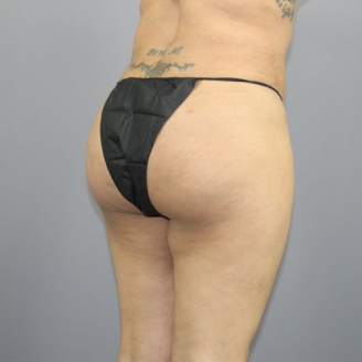 Buttock liposuction in Pale