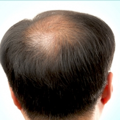 Causes of Hair Loss in Men, Women, Teenage