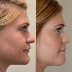 Chin Liposuction Surgery in Warangal