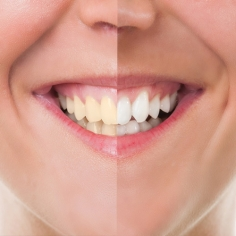 Cosmetic Dentistry in Warangal
