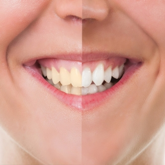 Cosmetic Dentistry in Jammu And Kashmir