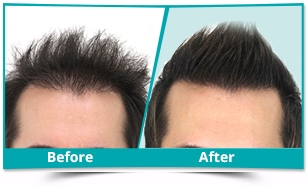 DHR Technique for Hair Loss in Upper Siang