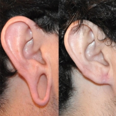 Earlobe Repair Surgery in Tadipatri