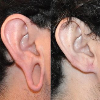 Earlobe Repair Surgery in Guntakal