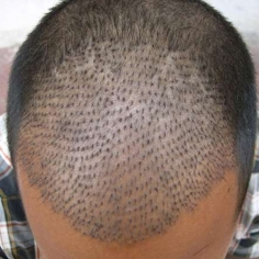 FUE Hair Transplant in Assam