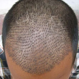 FUE Hair Transplant in Langford Town