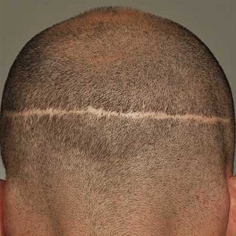 FUT Hair Transplant in Candola