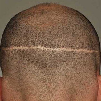 FUT Hair Transplant in Delhi