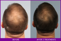 Failed Hair Transplant Repair in Candola