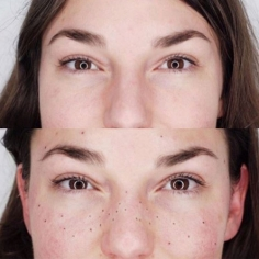 Freckle Control Treatment in International Airport