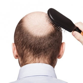 Hair Loss Treatment in Kurung Kumey