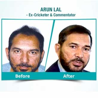 Hair Transplant in Anjaw