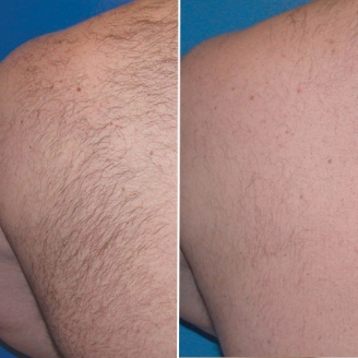 Laser Hair Removal Treatment in Dhalai