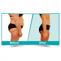 Liposuction Surgery in Manipur