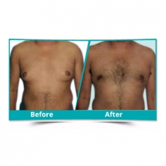 Male Breast Reduction Surgery in Muzaffarpur