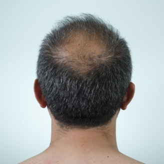Male Hair Loss Treatment in Middle East