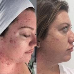 Microdermabrasion Treatment in International Airport