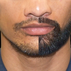 Moustache and Beard Transplant in Anjaw